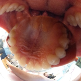 Explore inside the mouth of a Belgian with the #theta360 camera